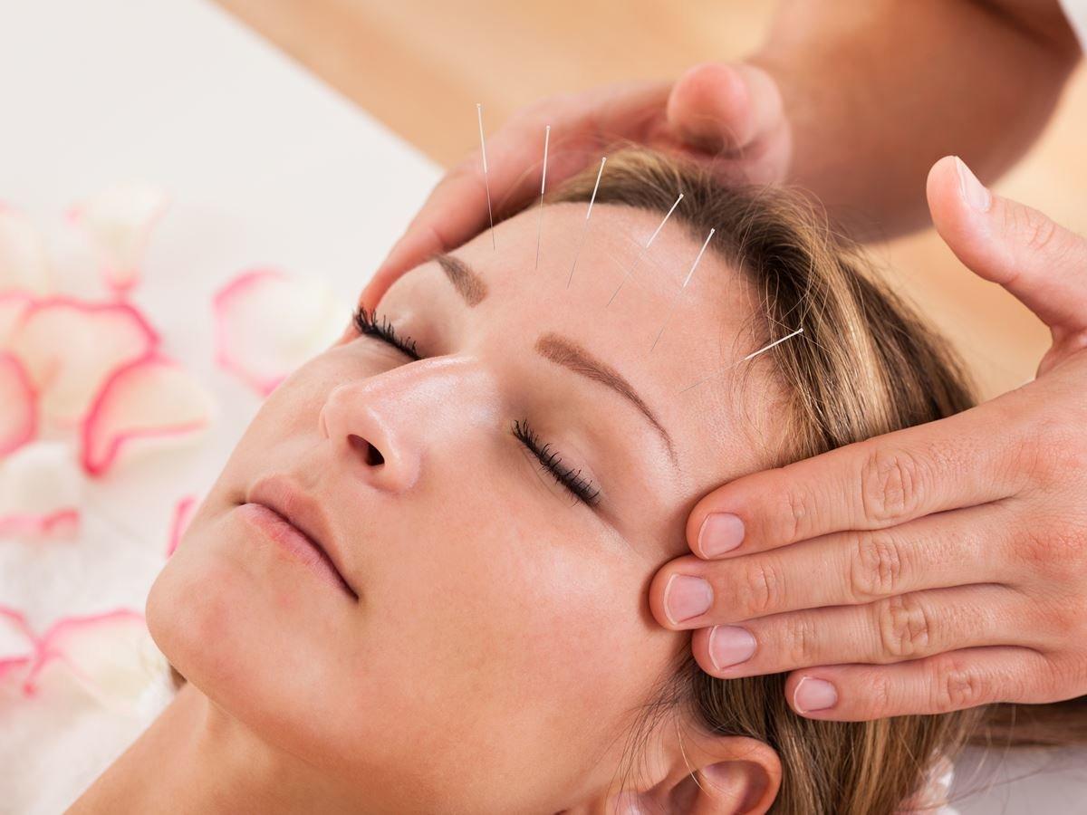 Acupuncture et maladies auto-immunes